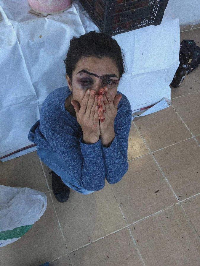 Τουρκία: Σκότωσε τον άντρα της για να γλιτώσει την ζωή των παιδιών της και διώκεται